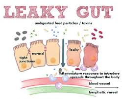colostrum leaky gut